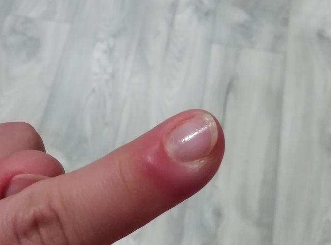 Zastrzał palca